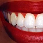 Протезирование зубов таллинн